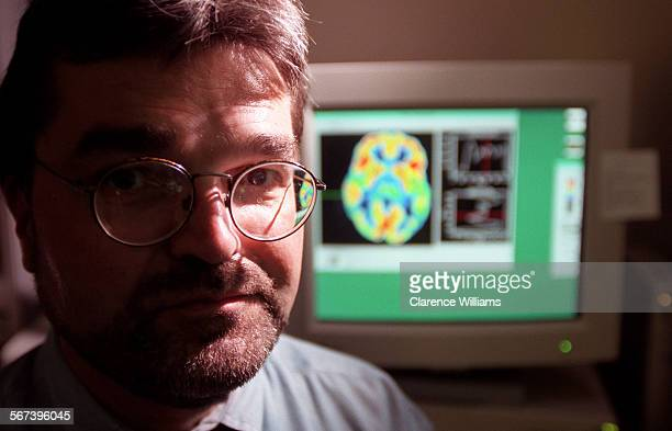 MEMayer#20904CW Dr Emeran Mayer is doing ground–breaking research into Irritable Bowel Syndrome Part of his work involves using PET scans to show...