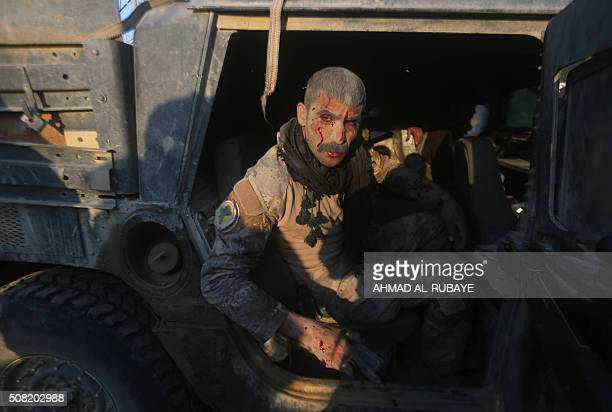 TOPSHOT A member of Iraq's elite counterterrorism service sits in a vehicle after being wounded in fighting the Islamic State group's jihadists in...