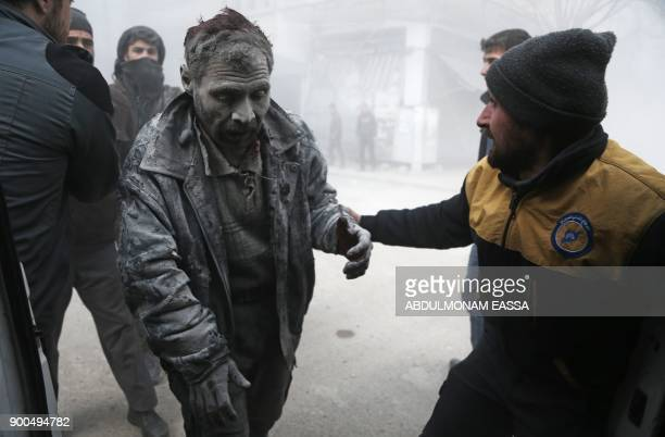 TOPSHOT A member of the Syrian civil defence is wounded in an air strike on the rebelheld besieged town of Arbin in the eastern Ghouta region on the...