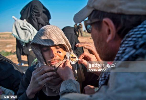 A member of the USbacked Syrian Democratic Forces checks the wound of a youth as people fleeing from the Baghouz area in the eastern Syrian province...