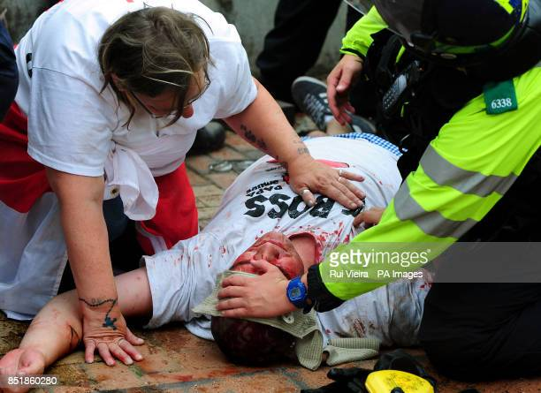 A EDL member receives first aid from the police after being injured during a EDL march at Centenary Square in Birmingham