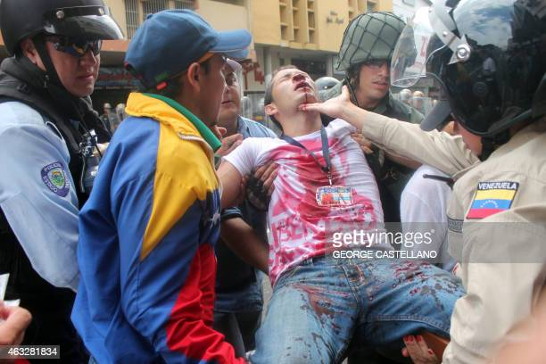 Members of the national guard carry an injured student during a protest against Venezuelan President Nicolas Maduro's government in San Cristobal...