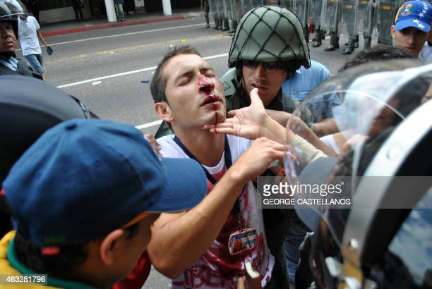 Members of the national guard help an injured student during a protest against Venezuelan President Nicolas Maduro's government in San Cristobal...