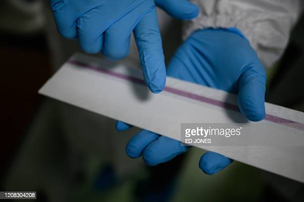 A membrane used to detect and display the presence of the COVID19 novel coronavirus in samples is displayed on a production line making testing kits...