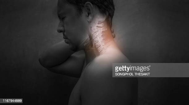 men who have neck pain due to cervical spondylosis  he must hurry to see a doctor for treatment. - hernie photos et images de collection
