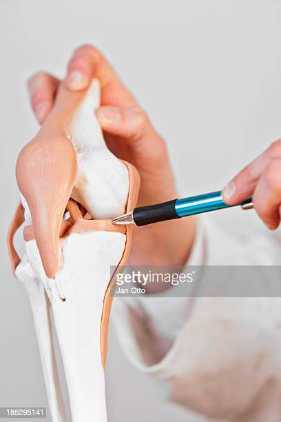 menisci - osteoarthritis stock photos and pictures