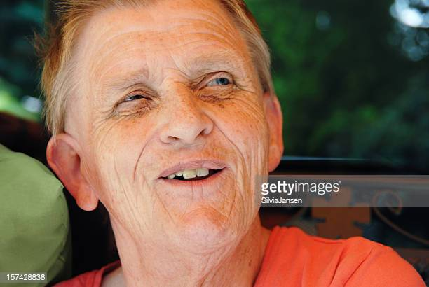 mentally disabled woman smiling