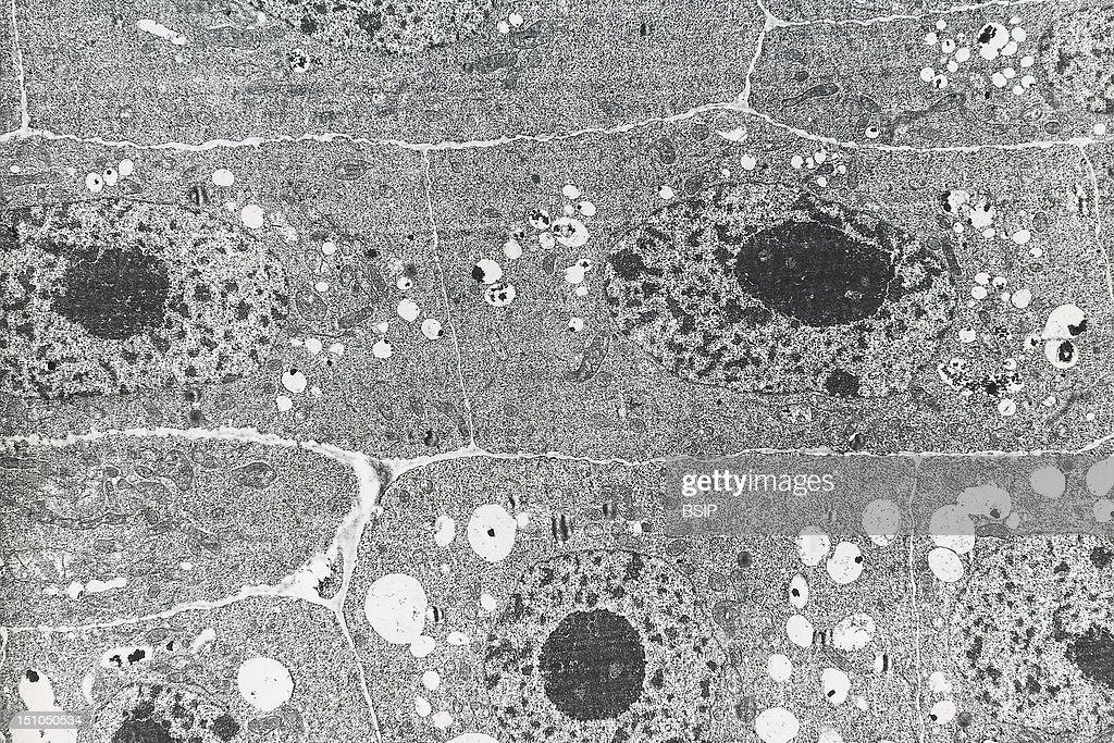 Plant Tissue : News Photo