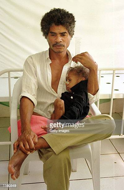 Mesakh a 3yearold from Becora who suffers from Tuberculosis and severe malnutrition is held by his father September1 2001 in the critical care ward...