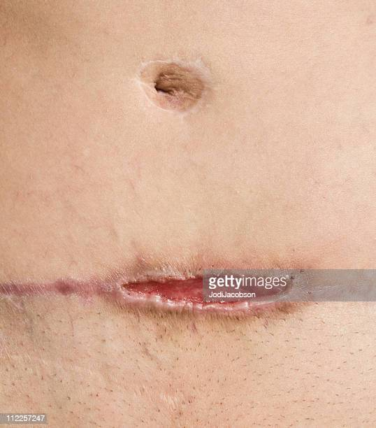 methicillen resistant staphylococcus aureus abdomen - medical stitches stock photos and pictures