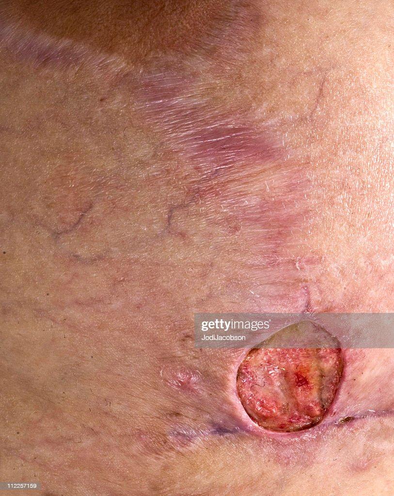 Methicillin Resiststant Staphylococcus Aureus breast : Stock Photo