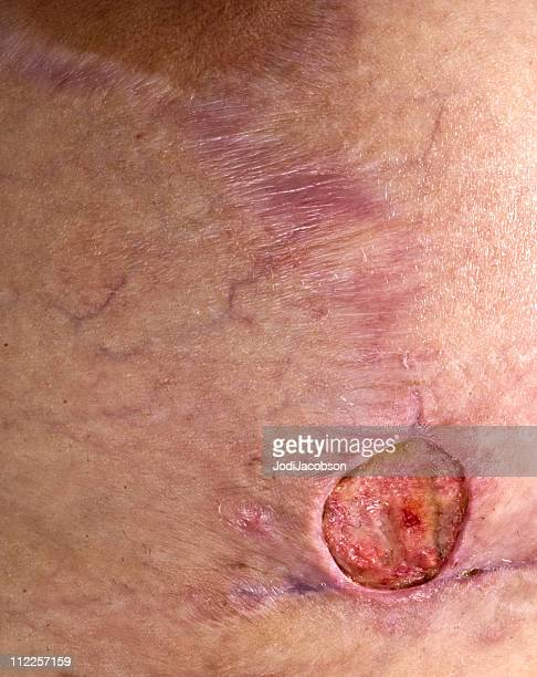 methicillin resiststant staphylococcus aureus breast - wounded stock photos and pictures