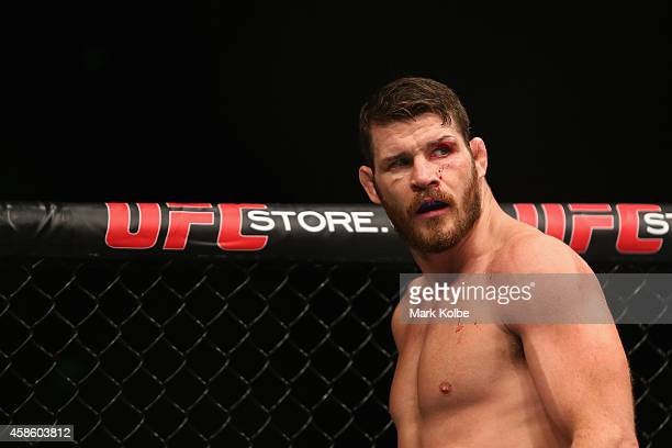 Michael Bisping of England is seen with a cut over his left eye in his loss to Luke Rockhold in their middleweight fight during the UFC Fight Night...