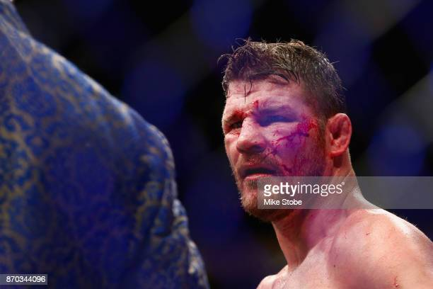 Michael Bisping of England looks on following his UFC middleweight championship bout against Georges StPierre of Canada during the UFC 217 event at...