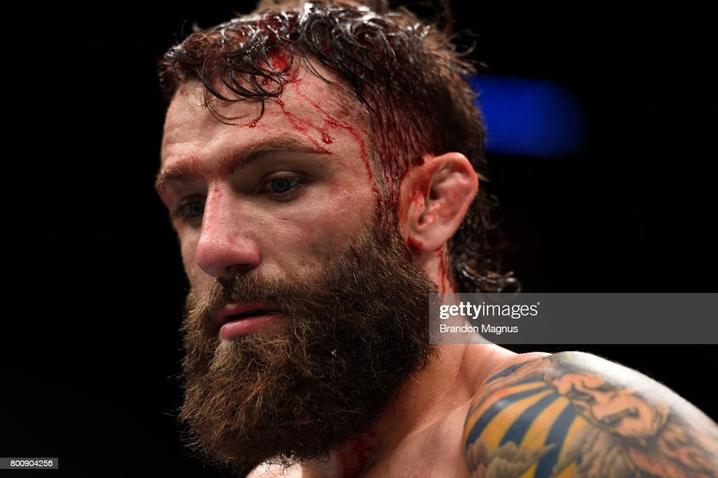 Michael Chiesa reacts after his submission loss to Kevin Lee in their lightweight bout during the UFC Fight Night event at the Chesapeake Energy Arena on June 25, 2017 in Oklahoma City, Oklahoma.