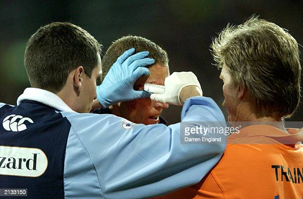 Michael De Vere of the Blues has his head stapled after suffering a head injury during game one of the NRL State of Origin Series between the...