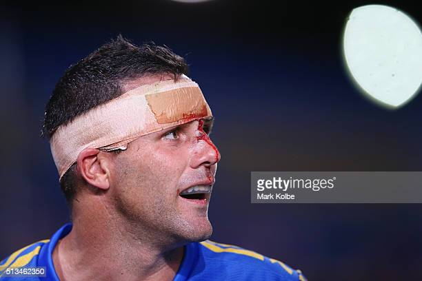 Michael Gordon of the Eels watches on with blood coming from a head wound during the round one NRL match between the Parramatta Eels and the Brisbane...