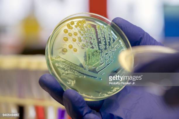 microbiologist examining a multi-drug resistant coliform (klebsiella pneumoniae) bacteria on cled agar plate - pathogen stock pictures, royalty-free photos & images
