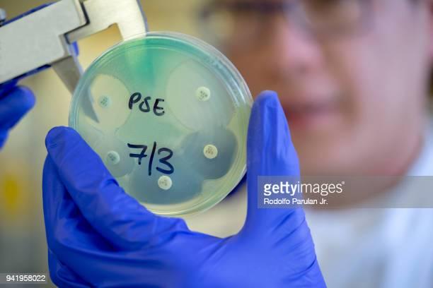 Microbiologist holding a caliper and antibiotic sensitivity plate of Pseudomonas aeruginosa bacteria.