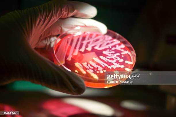 a microbiologist studying a growth of bacteria grown in the laboratory - micro organismo - fotografias e filmes do acervo