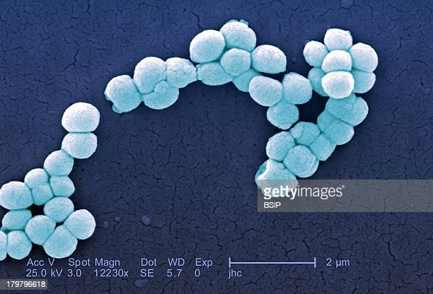 Micrococcus Luteus Immunocompromised Such Aids Patients Or Those On Chemotherapy Need To Be Concerned About These Bacteria However These Organisms...