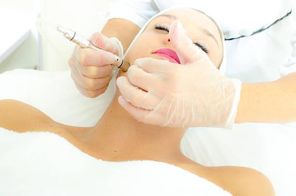laser hair removal burwood