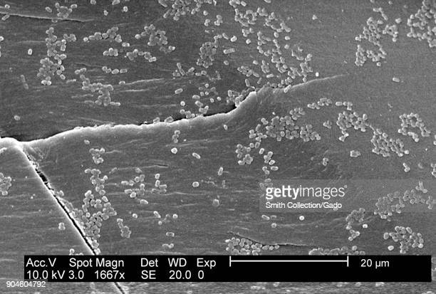 SEM micrograph of an E coli biofilm grown on PC material using a CDC biofilm reactor 2003 Image courtesy CDC/Biofilm Laboratory DHQP Chelsea...