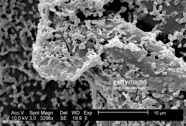 SEM micrograph of P mirabilis biofilm a bacterial colony grown on a PC surface using a CDC biofilm reactor 2003 Image courtesy CDC/CDC Biofilm...