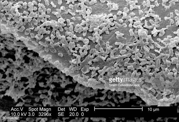 SEM micrograph of P mirabilis biofilm a GramNegative bacteria colony cultivated using a CDC biofilm reactor on PC coupons 2003 Image courtesy...