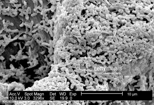 SEM micrograph of P mirabilis biofilm GramNegative bacteria colony grown using a CDC biofilm reactor over PC coupons 2003 Image courtesy CDC/Biofilm...