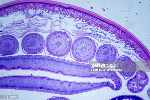 microscopic image of ascarid (cross section) - nematode worm stock pictures, royalty-free photos & images