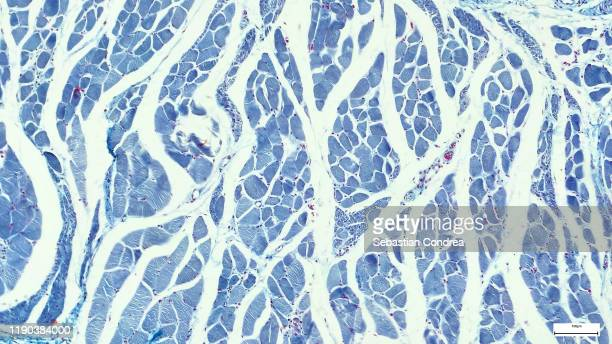 microscopy photography. cardiac muscle section, immunofluorescent photomicrograph, organs samples, histological examination, histopathology on the microscope. - scientificsubjects stock pictures, royalty-free photos & images