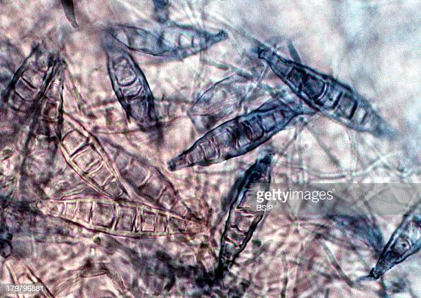 Microsporum Fungus Which Is The Causative Agent Of Tinea Ringworm Microscopic Image 600X