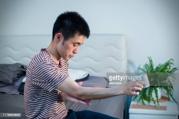 mid adult man using medication for his skin condition - eczema stock pictures, royalty-free photos & images