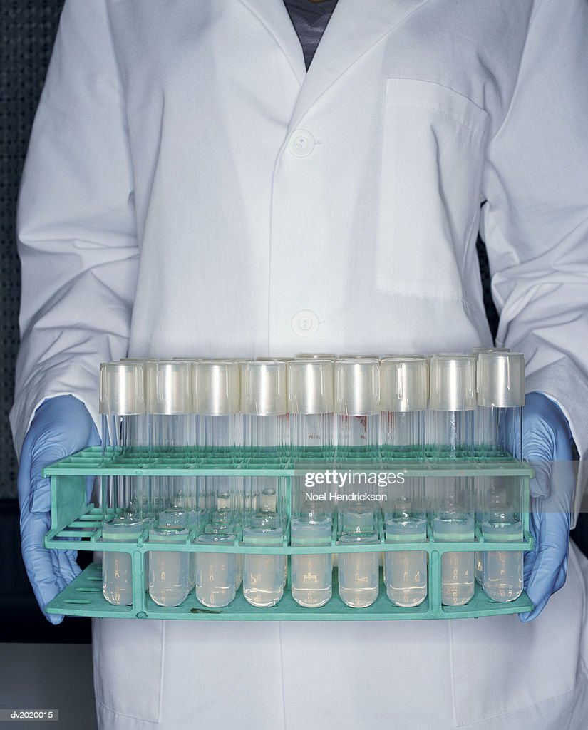 Mid Section Shot of a Scientist Wearing a Lab Coat Holding a Rack Filled with Test Tubes : Stock Photo