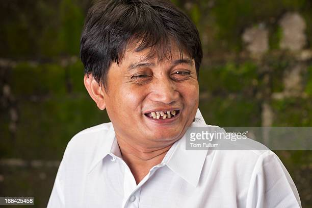 mid-adult filipino man - ugly teeth stock photos and pictures