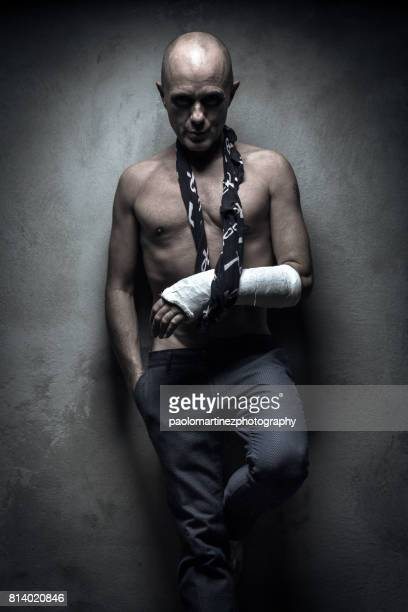 Middle aged man with plaster arm
