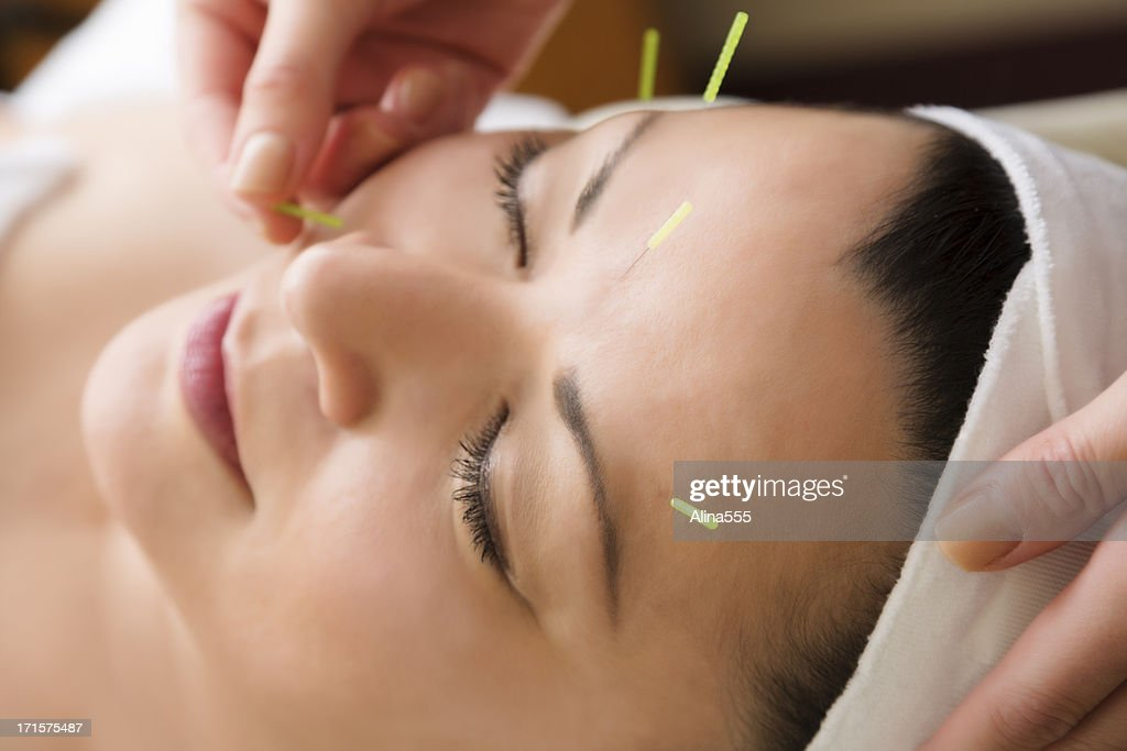 Middle aged woman getting acupuncture treatment at the spa : Stock Photo