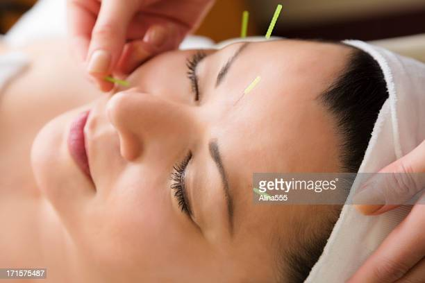 middle aged woman getting acupuncture treatment at the spa - acupuncture needle stock pictures, royalty-free photos & images