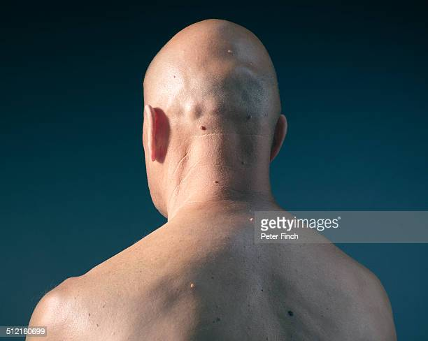 Middle-aged man's back with moles