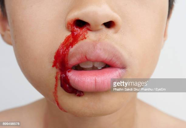 midsection of boy with bleeding nose against white background - sangre por la nariz fotografías e imágenes de stock