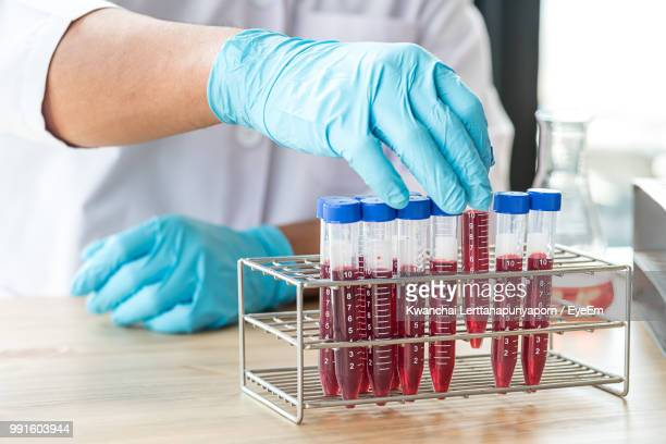 midsection of doctor holding blood in test tubes on table at hospital - red tube stock photos and pictures