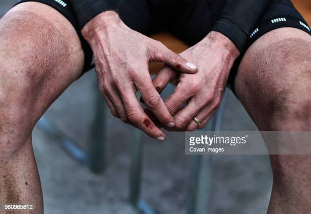 midsection of injured male cyclist sitting on chair outdoors - bruise stock pictures, royalty-free photos & images