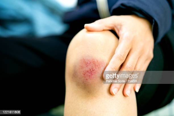 midsection of man with bruise on knee - bruise stock pictures, royalty-free photos & images
