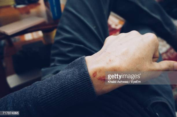 Midsection Of Man With Scar On Wrist