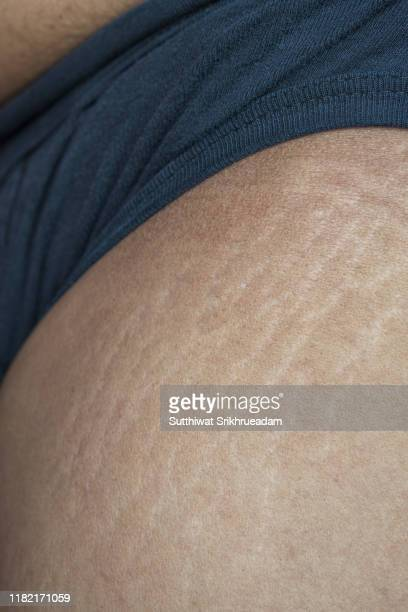 midsection of man with stretch marks on thigh - estrias fotografías e imágenes de stock