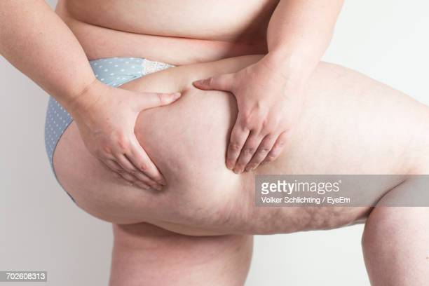 midsection of obese woman holding her thigh against white background - celulitis fotografías e imágenes de stock