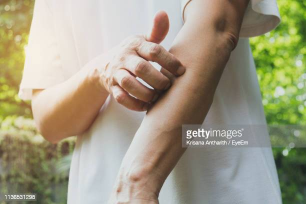 midsection of woman scratching hand outdoors - dermatoses photos et images de collection