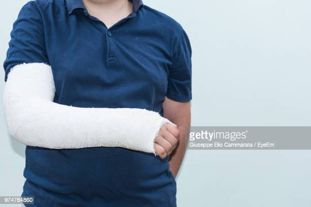 midsection of woman with broken arm standing against wall - broken arm stock pictures, royalty-free photos & images