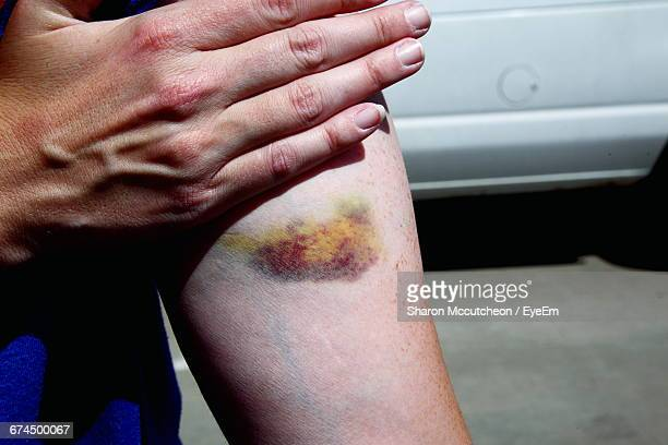 midsection of woman with bruise on arm at footpath - bruise stock pictures, royalty-free photos & images